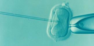 ucla-infertility-miscarriage-study