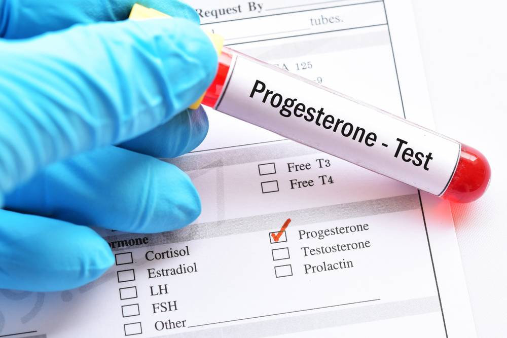 Low progesterone and the luteal phase deficiency