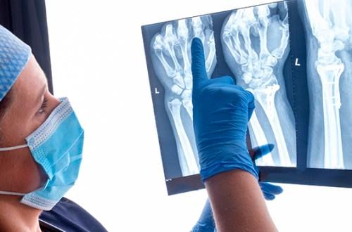 Diferencias entre ortopedia y reumatología