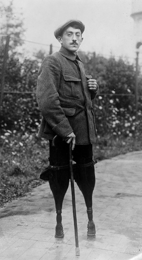 Injured WWI soldier. These soldiers were part of the lost generation