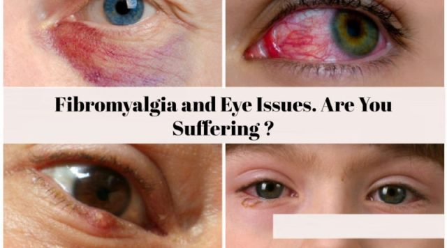 Fibromyalgia and Eye Issues. Are You Suffering ???