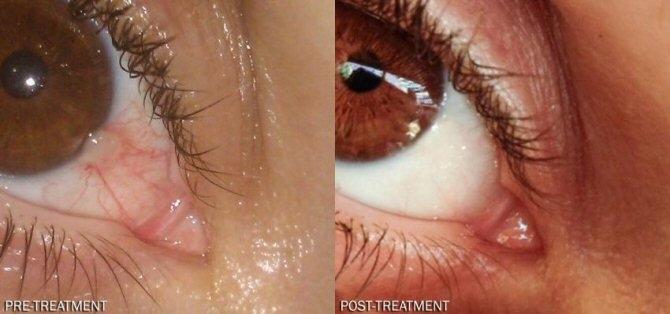 Die Auswirkungen der Fibromyalgie auf die Augen