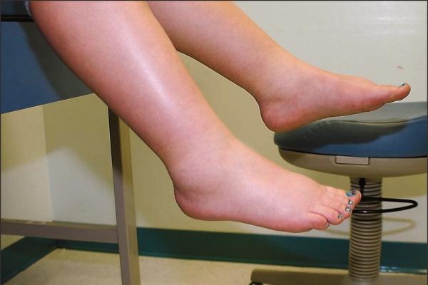¿Qué causa la hinchazón de la fibromialgia?Por favor comparta esta información