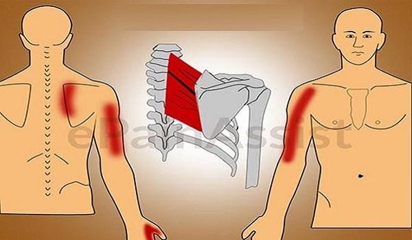Fibromiyalji ve Miyopasal Ağrı Sendromu