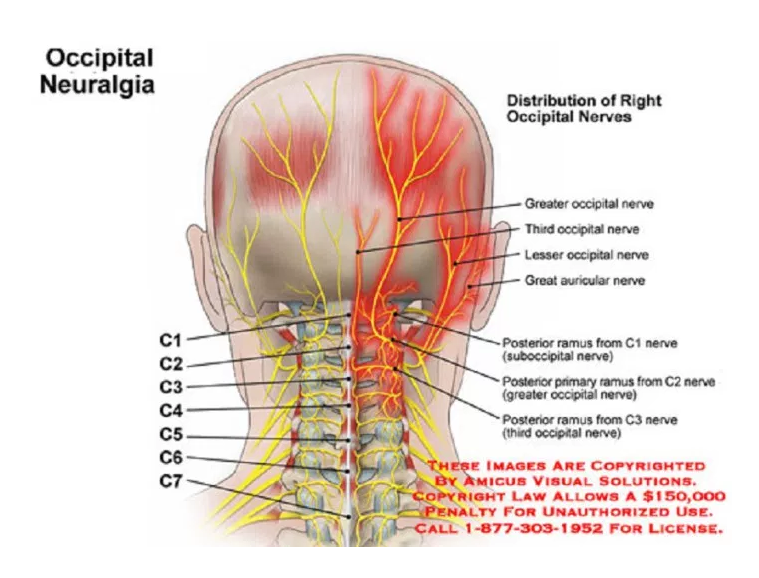WHAT IS OCCIPITAL NEURALGIA AND HOW IT LINKS WITH FIBROMYALGIA