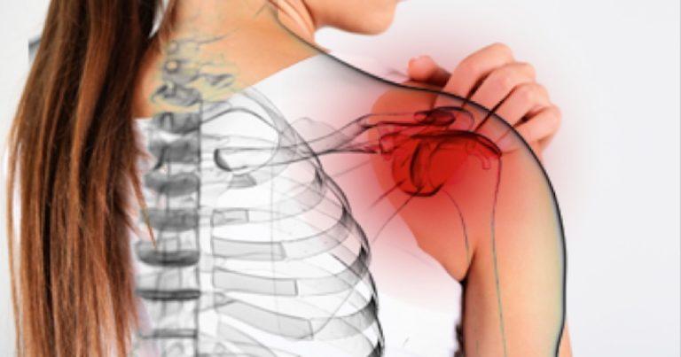 How to Treat Frozen Shoulders in Fibromyalgia