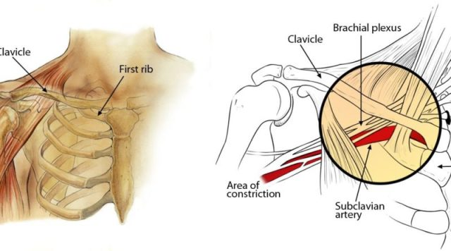 How Clavicle Pain is Connected with Fibromyalgia?
