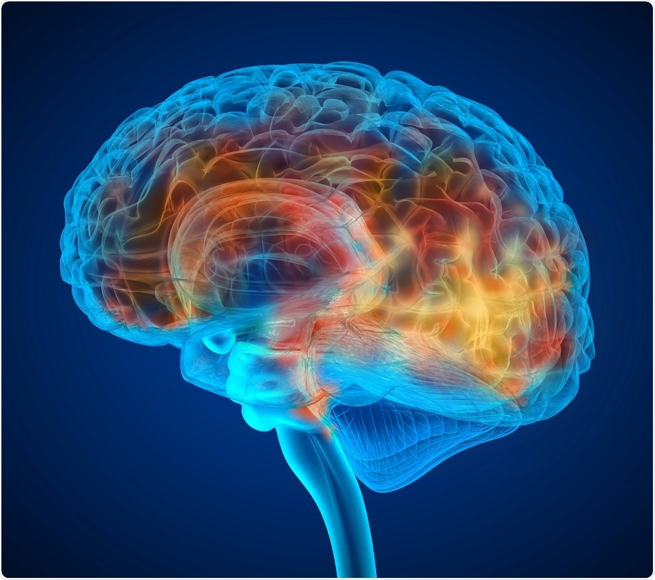 Extensive brain inflammation present in fibromyalgia patients, shows recent multicenter study