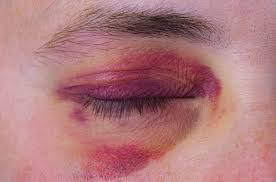 Fibromyalgia and Bruising: Effects of an Invisible Disease