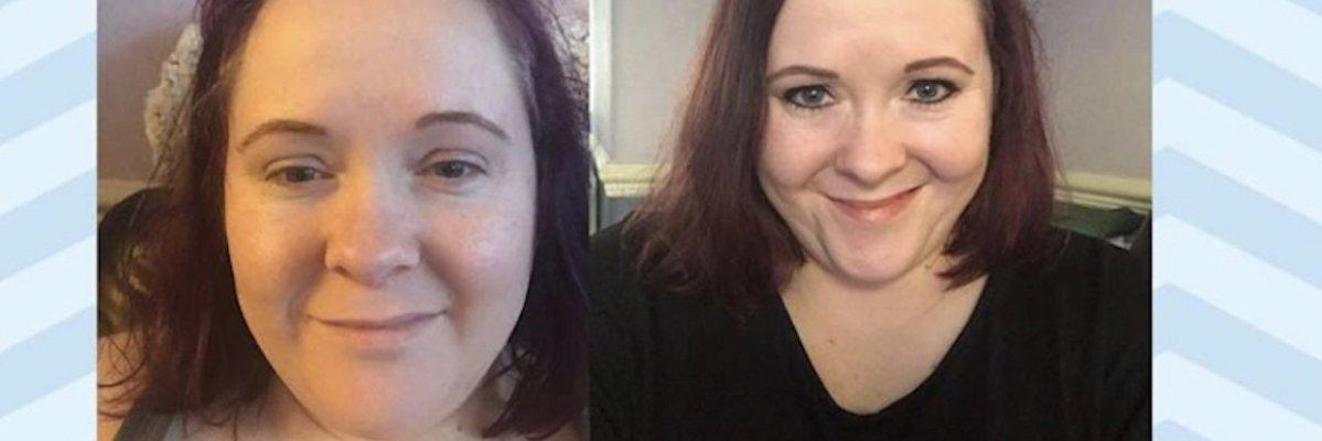 The Two Faces of My Fibromyalgia