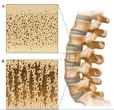 Osteoporosis Compression Fracture