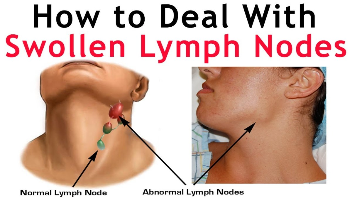 inflamed lymph node in neck