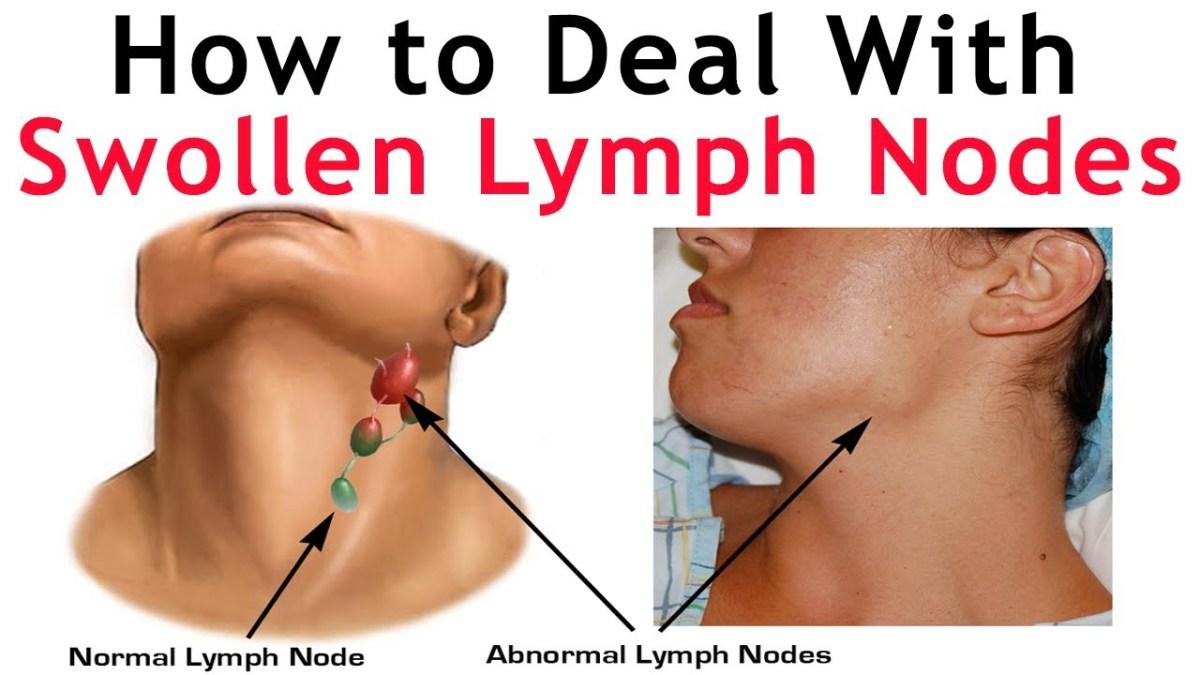 U00bb Swollen Glands Or Lymph Nodes With Fibromyalgia  U0026 Me  Cfs