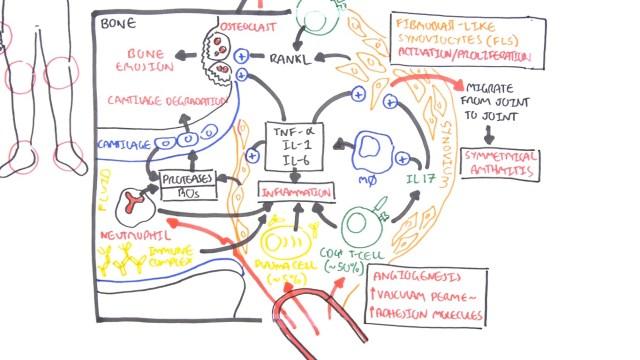Rheumatoid Arthritis Pathophysiology cytokines