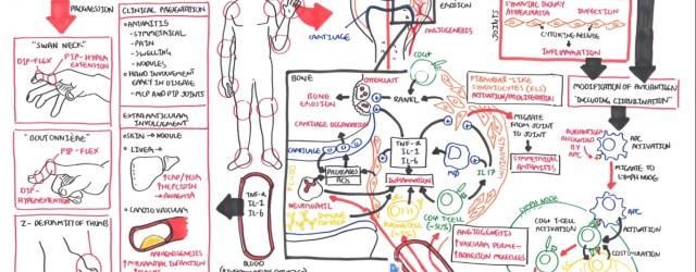 Rheumatoid Arthritis Pathophysiology