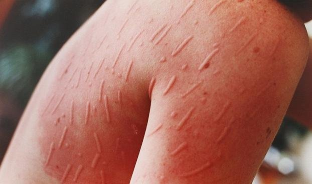 What Causes Urticaria? How It is Linked With Fibromyalgia