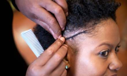 Black Hair Styling Methods May Cause Hair Loss: Black Women's Health Study