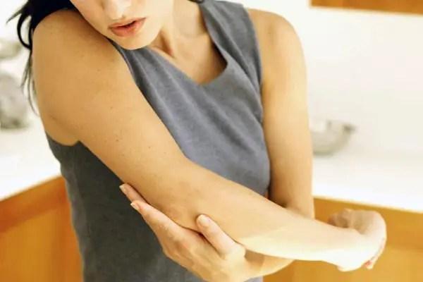 bengala quemadura problema en pacientes con fibromialgia