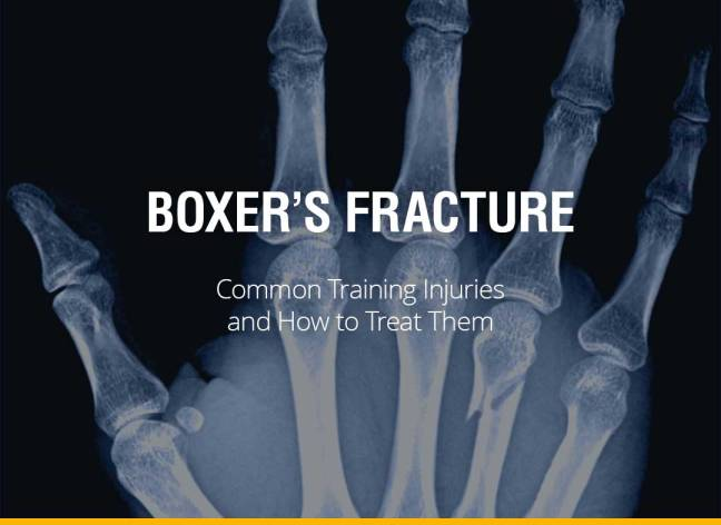 Common Training Injuries and How to Treat Them - Boxer's Fracture