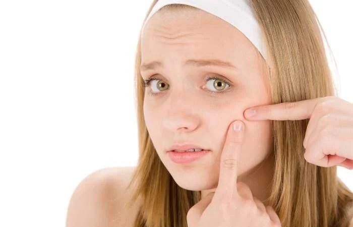 Không tự ý nặn mụn tại nhà vì có thể khiến vùng da mụn lan rộng