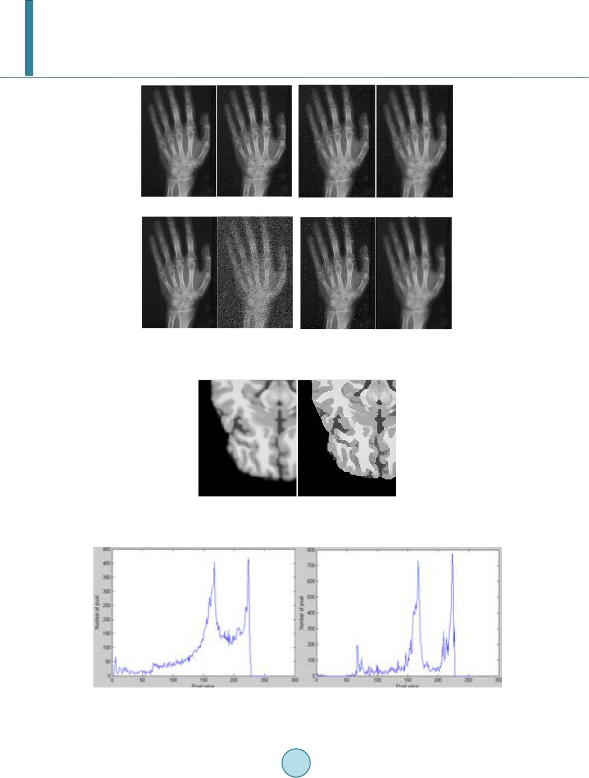 Implementation Of Shock Filter For Digital X Ray Image Processing