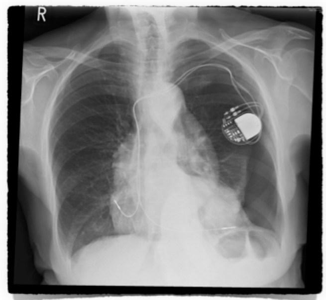 Image Quiz Pneumothorax 1