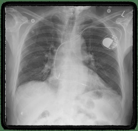 CXR PA Case 1