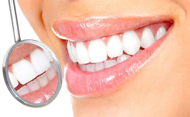 Resultado de imagen para teeth whitening