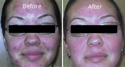 Skin-treatment-before-and-after