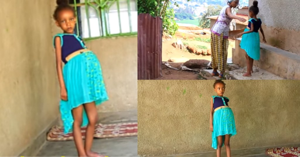 Strange 6 Year-Old Girl Whose Stomach Keeps Growing Bigger Begs For Help