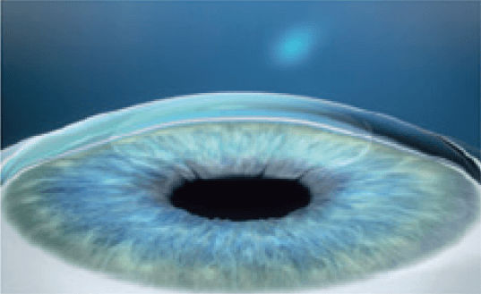 3. With the lenticule removed, the cornea shape is altered, achieving the desired refractive correction.