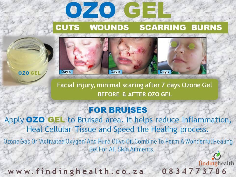 OZOGEL7