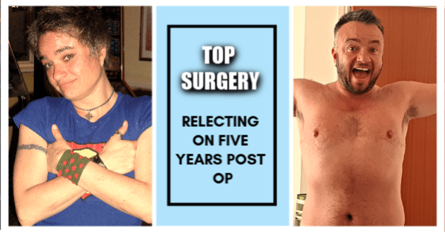 Top surgery a five year post op reflection. Gender transition surgery chest reconstruction