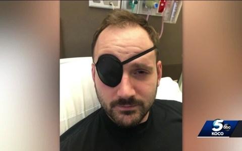 Son crujidos sanos: Un hombre de Oklahoma sufre un derrame cerebral tras hacer crujir su cuello