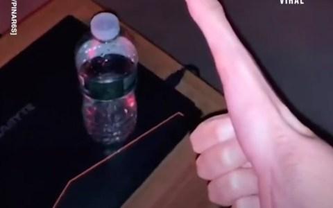 Jacob tiene el dedo gordo más largo del mundo
