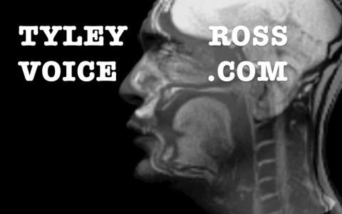 Esta es la pinta que tiene el interior de tu cabeza cuando cantas, visto con una resonancia magnética