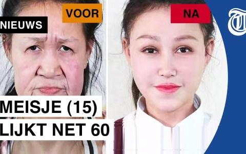 Una joven de 15 años que aparenta 60 por una enfermedad rara rejuvenece su cara gracias a la cirugía plástica
