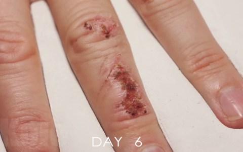 Curación de una herida en un timelapse de 10 segundos