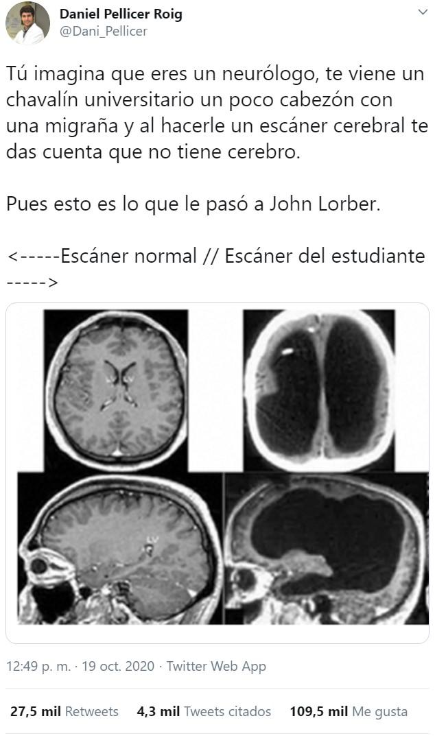 ¿Es el cerebro realmente necesario?