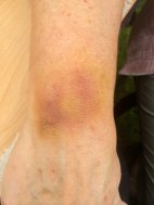 Old bruise on arm