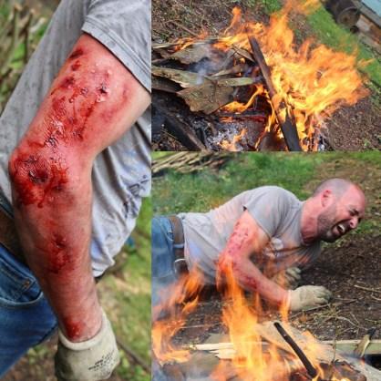 Fire burns