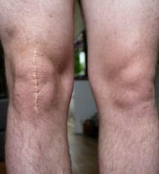 Scar on Knee