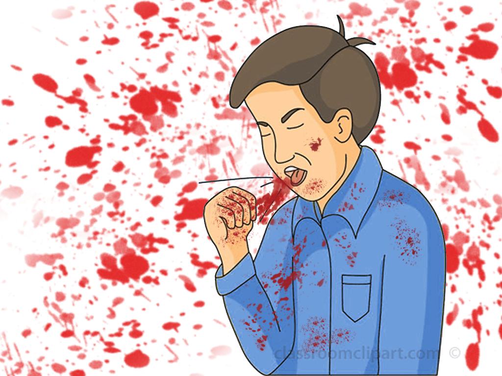 massive hemoptyssis