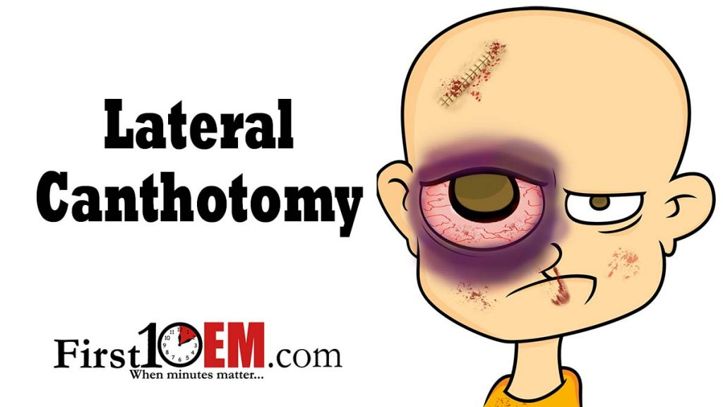 Lateral Canthotomy