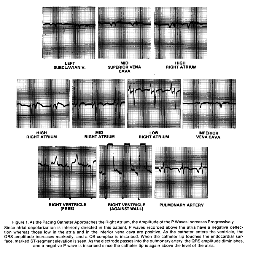 Bing 1972 ECG changes with transvenous pacermaker.PNG