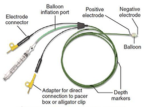 Pacing wire 300.png