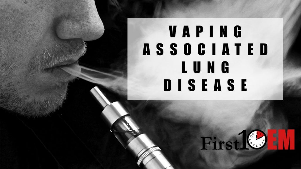 Vaping Associated Lung Disease title image