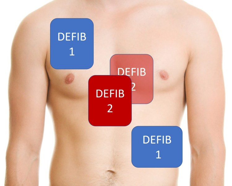 Double sequential defibrillation pad placement