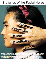 Road Trip!!- Three Mnemonics for the Facial Nerve 2