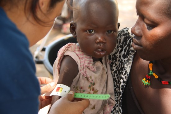 One-year-old Achuol has her health checked in Bahr el Ghazal, South Sudan. ©Medair/Diana Gorter